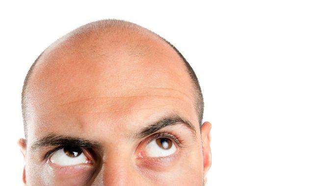 O字ハゲ(頭頂部ハゲ/つむじハゲ) つむじハゲの初期症状