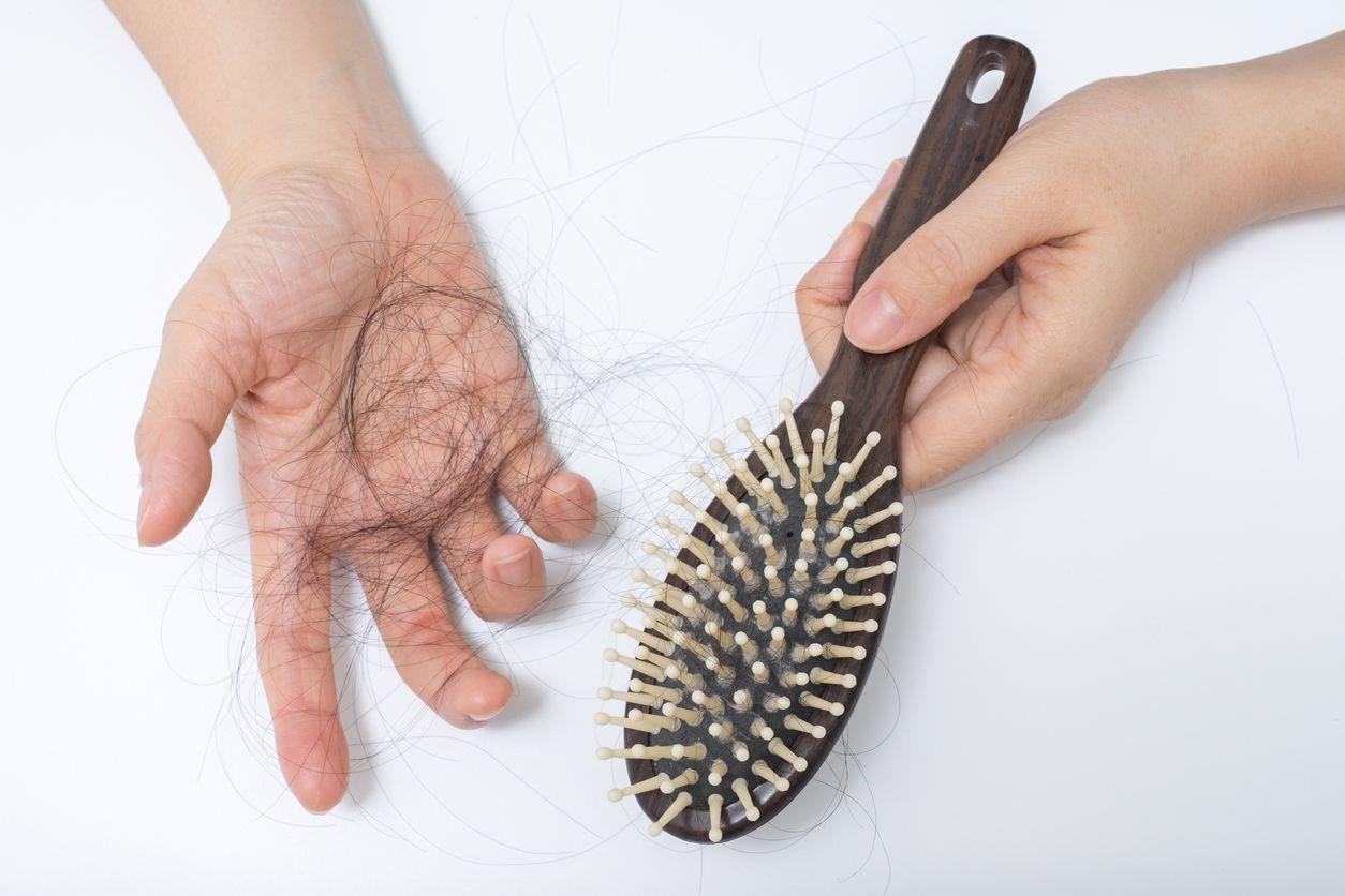 O字ハゲ(頭頂部ハゲ/つむじハゲ) ブラッシングなどで髪が引っ張られやすい